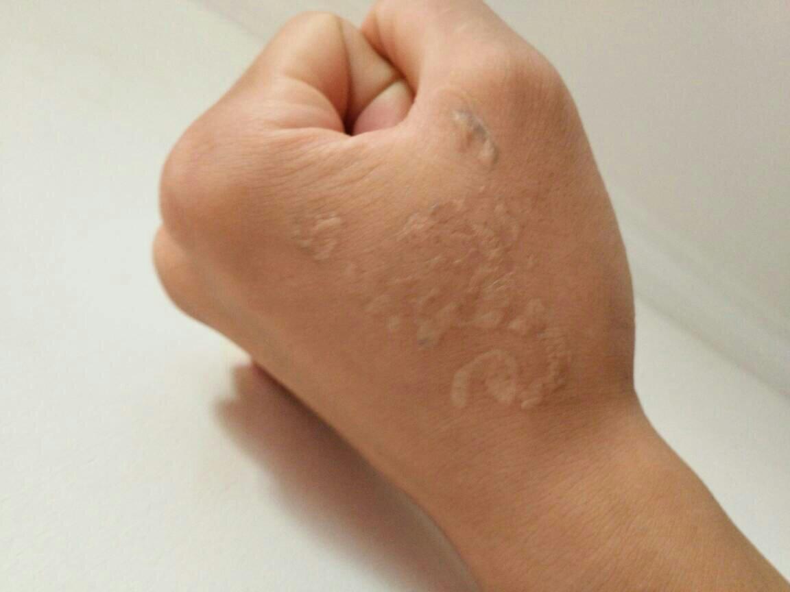 去除纹身留下的疤是一种什么感受