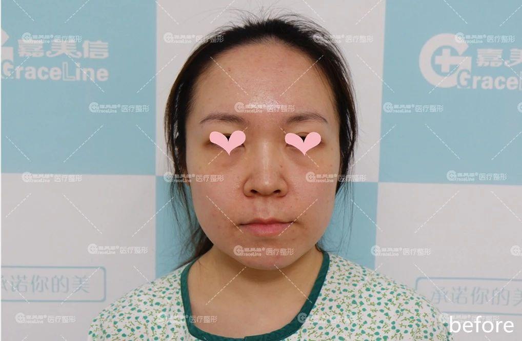 """嘉美信叶文珏—— """"变肥为宝"""",胖反而成了她们美的加持!"""