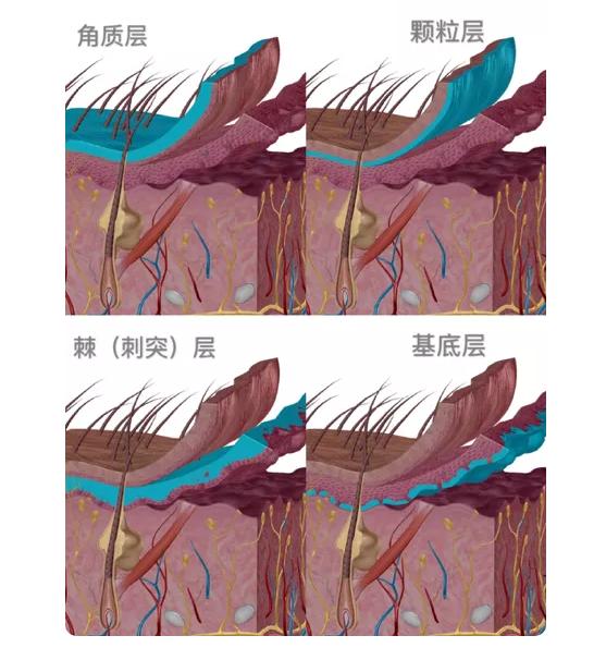 从皮肤结构着手,看丽铂纳如何从根源解决肌肤问题