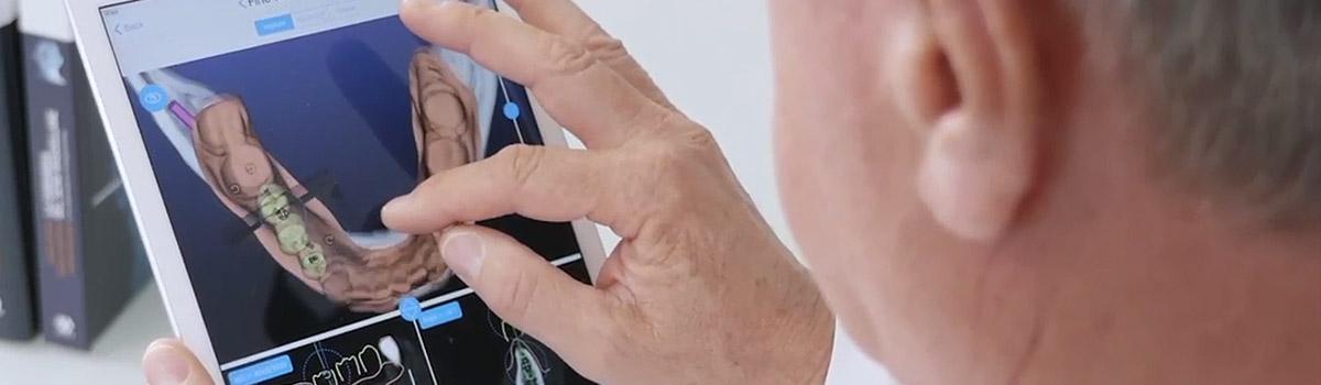 天津海德堡联合口腔种植主任【蔡明河】引领数字化种牙潮流