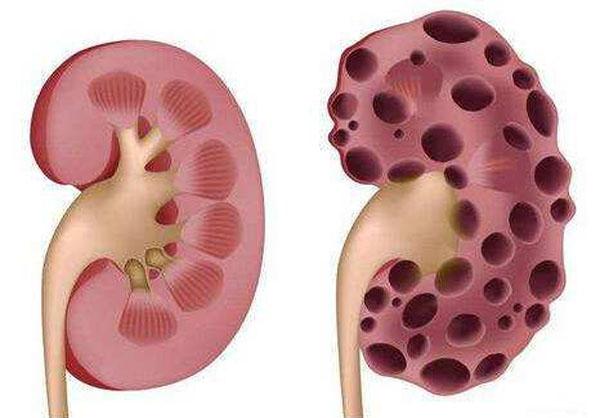 年轻肾病患者为什么多发生肾衰竭?