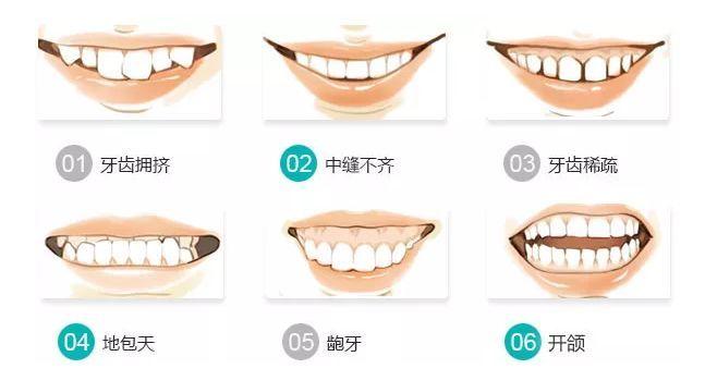 天津美学正畸专家【李欣】:【海德堡联合口腔】——告别歪牙,从正畸开始!