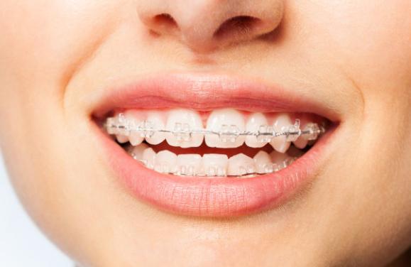 听【天津海德堡联合口腔】专家谈牙齿矫正!更权威、更专业、值得信赖!
