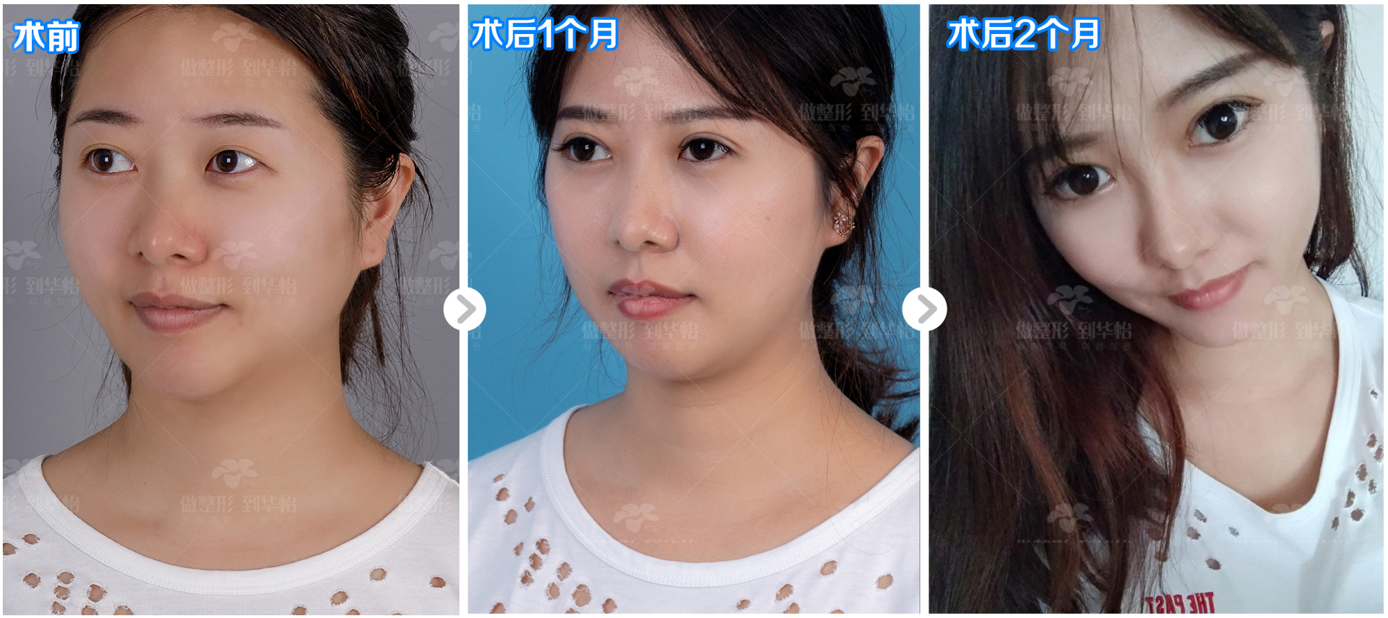 威海华怡医院 双眼皮技术以专业赢得好口碑