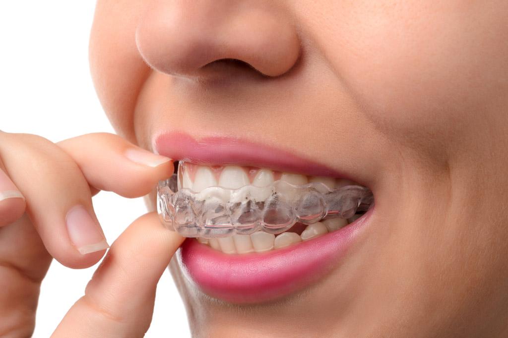 天津海德堡口腔,正畸专家李欣:牙齿不齐,这三个阶段矫正拯救孩子畸形牙齿!