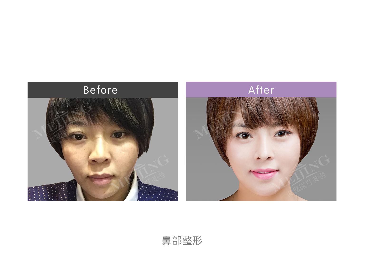 北京美憬医疗美容外聘韩方院长-李炳浍教授