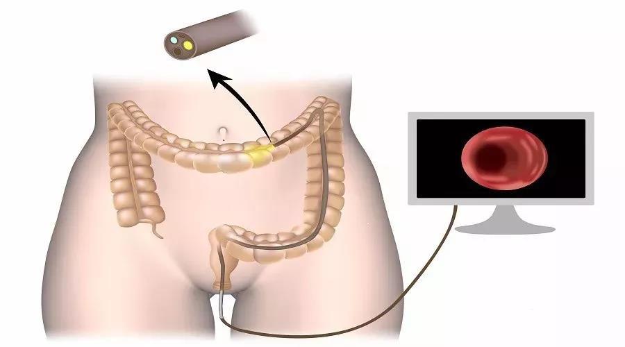 深圳远大肛肠医院:关于肛瘘手术必须明确7个关键问题