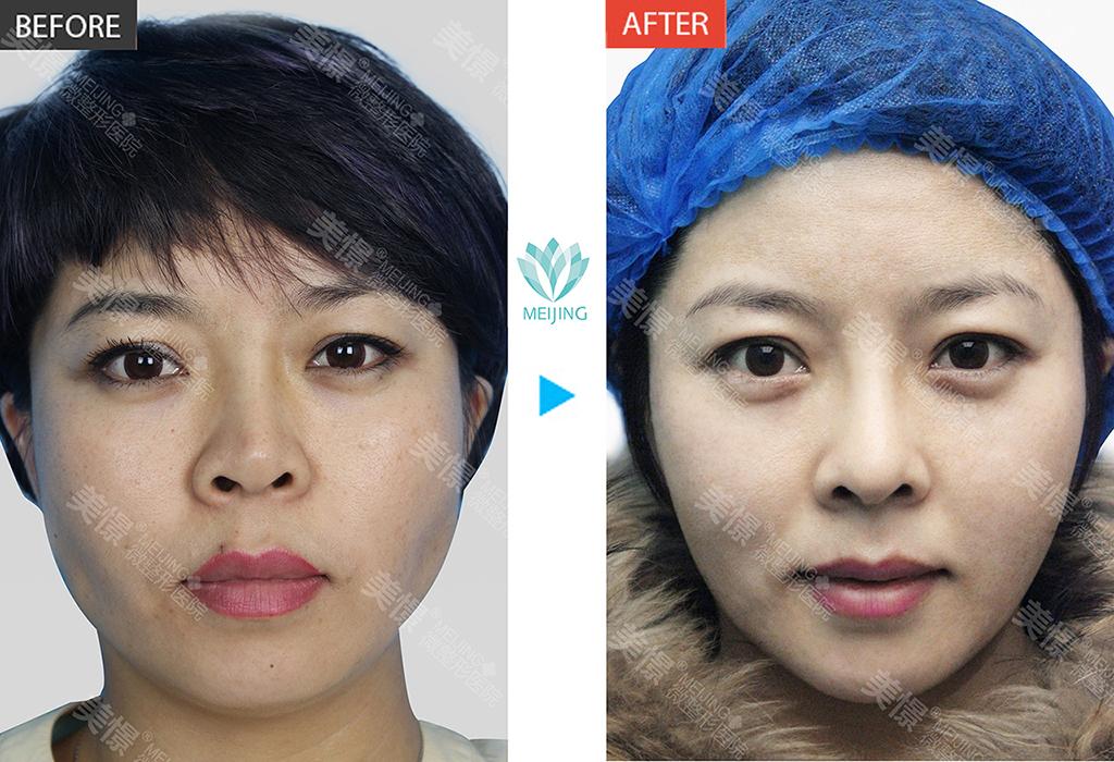 美憬医疗美容李炳浍院长鼻综合手术,在线预约