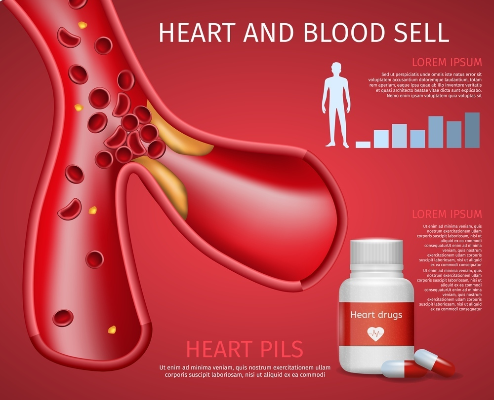 摄图网_306093394_红色动脉硬化药物矢量设计背景(非企业商用)