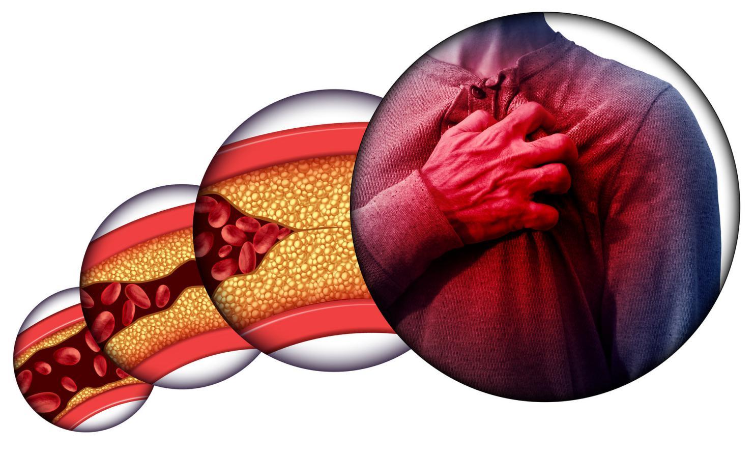 摄图网_300885327_banner_人类心脏病胸痛由堵塞的动脉动脉损害胆固醇导致心脏骤停与三维插图元素(非企业商用)