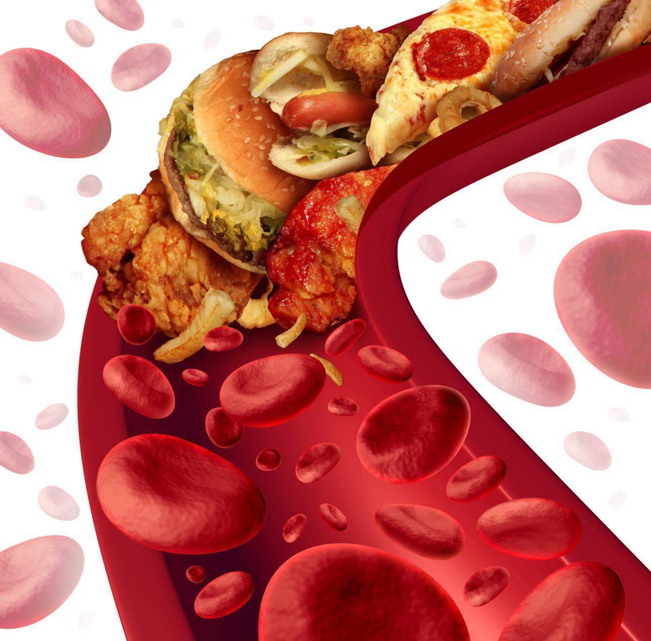 摄图网_300848074_banner_胆固醇阻断了动脉的医学,人体血管被健康的食物堵塞,如汉堡包油炸食品,健康风险的隐喻,节食营养问题如饮食脂肪(非企业商用)