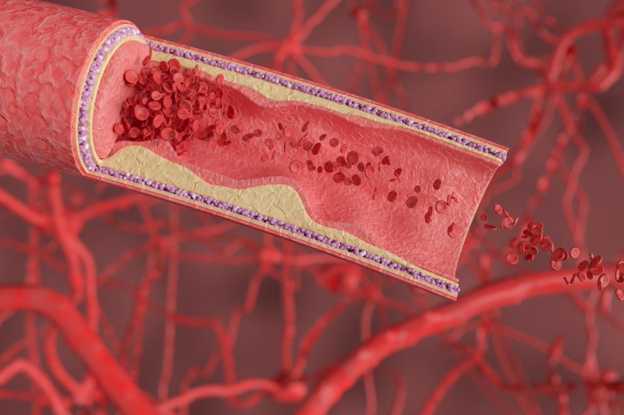 摄图网_401909523_人体血管场景(非企业商用)