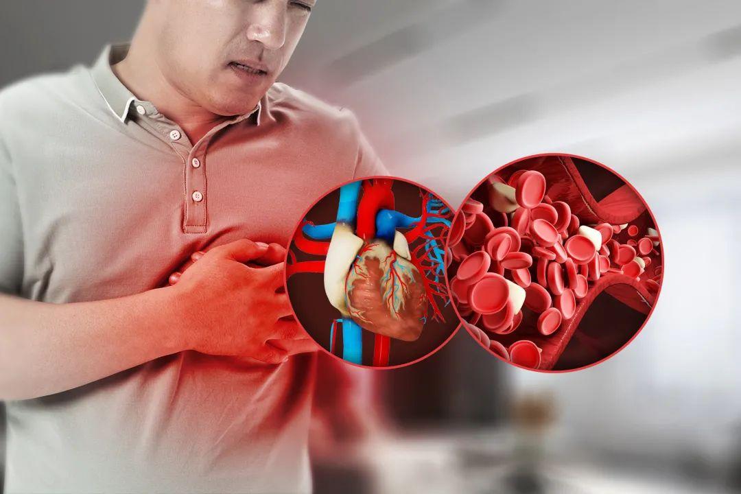"""打通全身""""气血通道"""",心脑血管的克星一氧化氮"""